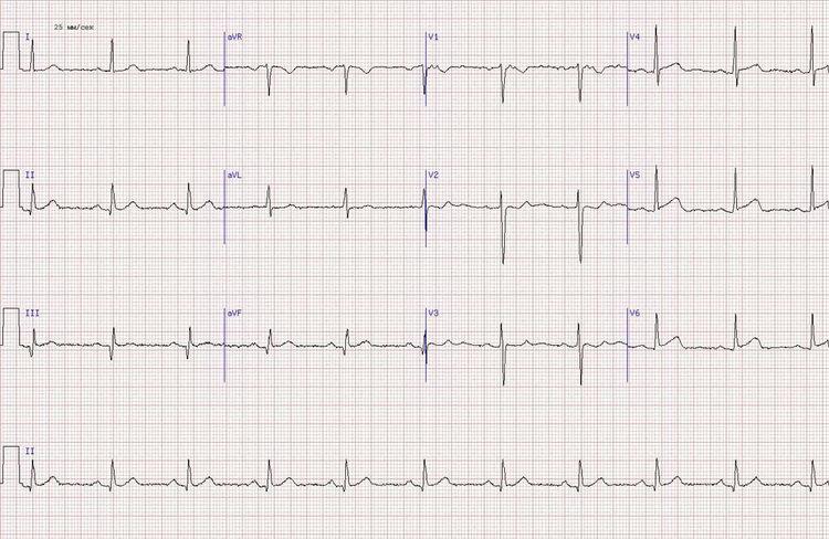 Острый инфаркт миокарда боковой стенки