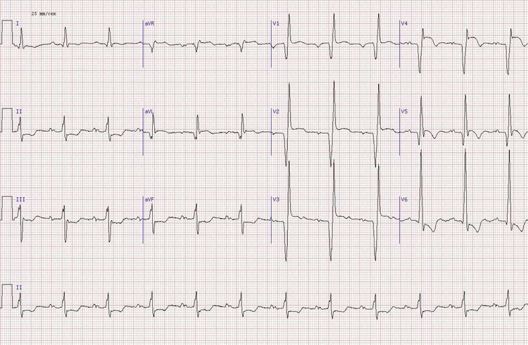 нижне-боковой и вероятно задний инфаркт миокарда