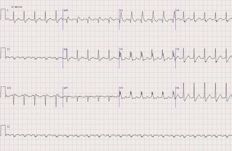 нижний Q-инфаркт миокарда неопределенной давности