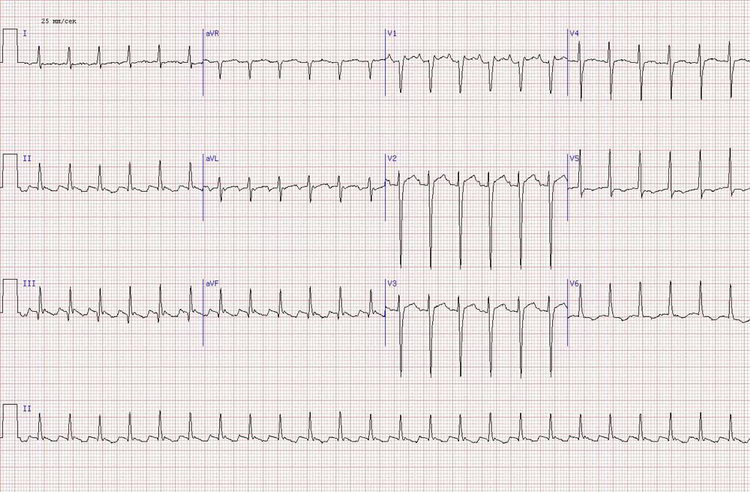Острый инфаркт миокарда нижней стенки