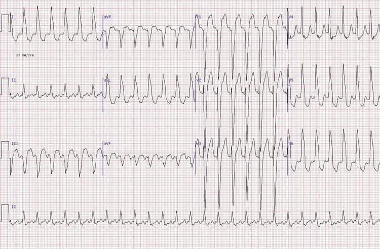 R в V1-V2 из-за бокового инфаркта миокарда