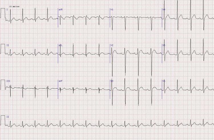 ИБС, задне-боковой инфаркт