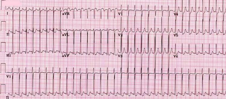 Острый инфаркт миокарда задне-диафрагмальной области