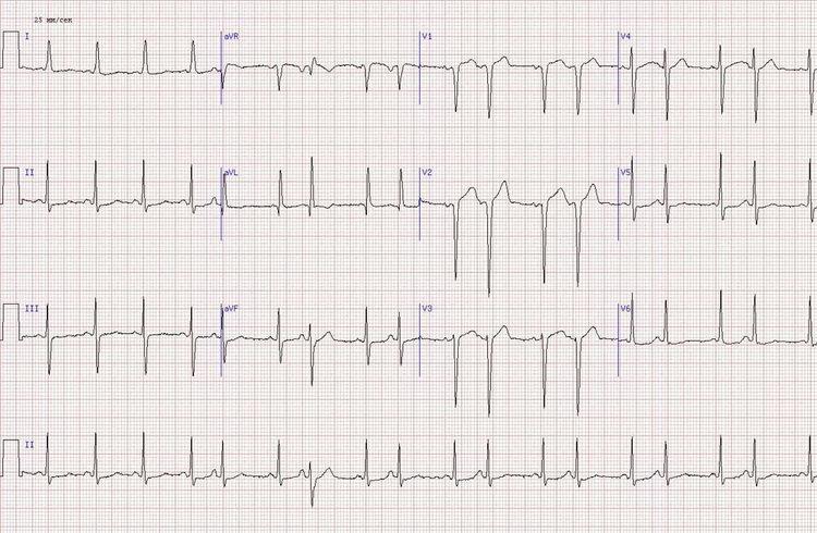 Острый передне-боковой инфаркт миокарда