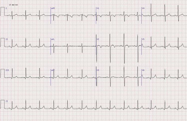 нормальная кардиограмма в 11-летнего подростка