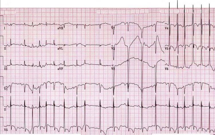 Острый задне-боковой инфаркт миокарда