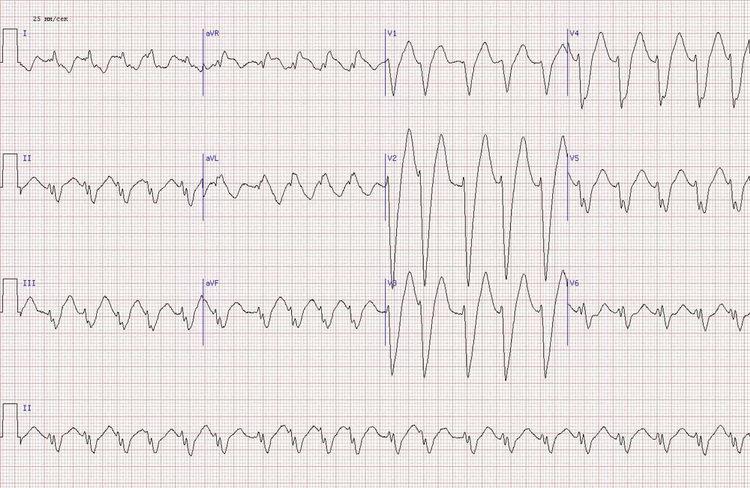передне-перегородочный инфаркт миокарда