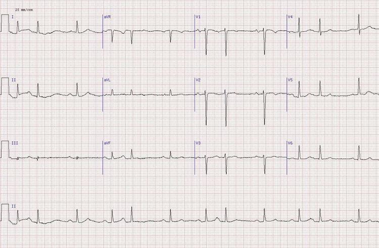 острый инфаркт миокарда задне-боковой