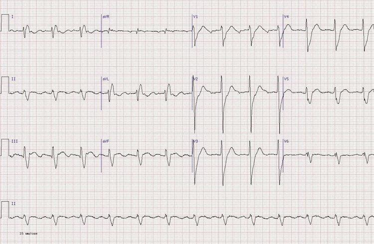 Кардиограмма человека средних лет с остановкой сердца в анамнезе