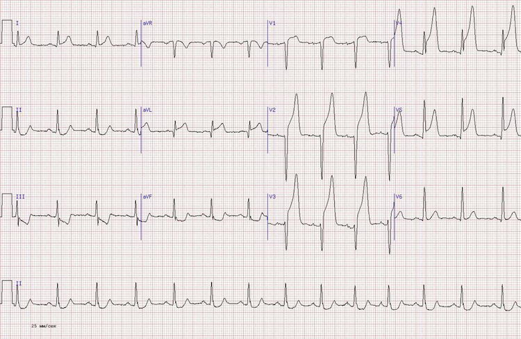 Острый передний инфаркт миокард