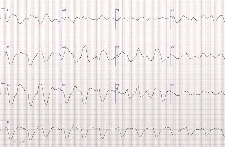 Передний Q-позитивныйинфаркт миокарда