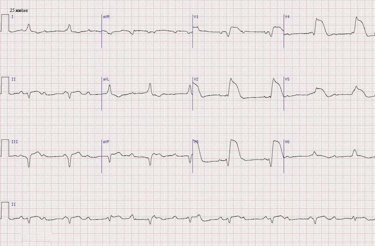 острый передний инфаркт миокарда