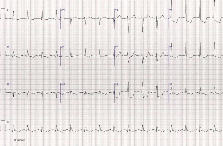 Q-позитивным инфаркт миокарда задней стенки