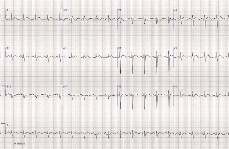 Острейший переднийинфаркт миокарда